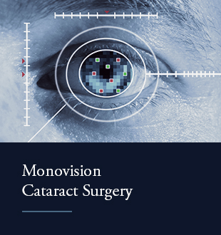 Monovision Cataract Surgery